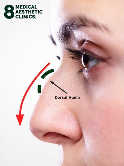 Nose Dorsal Hump