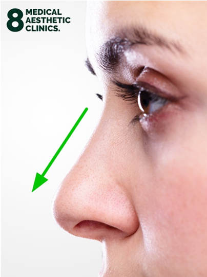 Nose Dorsal Hump Straighten