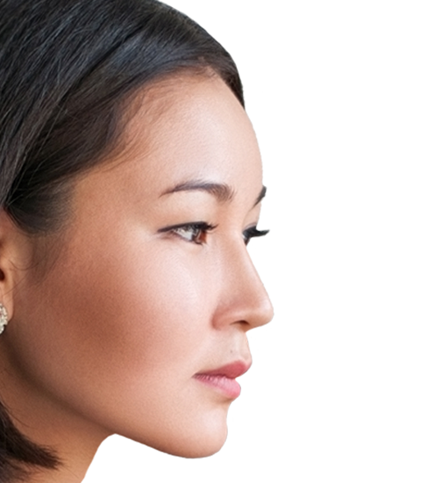 Nose threadlift treatment-$429