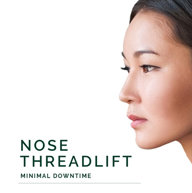 nose threadlift